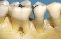 Parodontose Kiefer