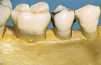 Keine Parodontitis