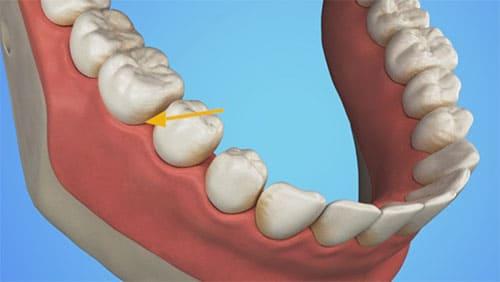 Plaque in den Zahnfleischfurchen kann zu Parodontitis führen
