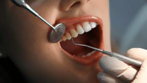 Sondierung Zahnfleischtaschen