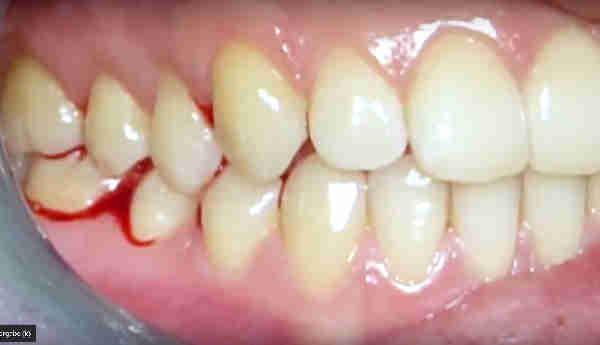 Zahnfleischentzündung, Bluten