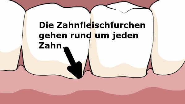 Zahnfleischfurchen, Comic