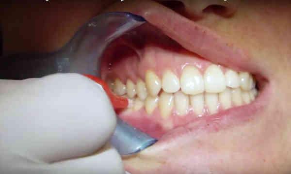 Zahnfleischentzündung, Test
