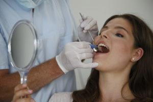 Vorgang Professionelle Zahnreinigung, Parodontitis vorbeugen
