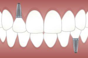 Zahnimplantat Grafik