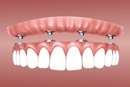 Deckprothese, Implantat