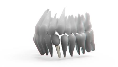 Zähne 3D Modell