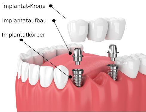 Zahnimplantat Bestandteile Aufbau